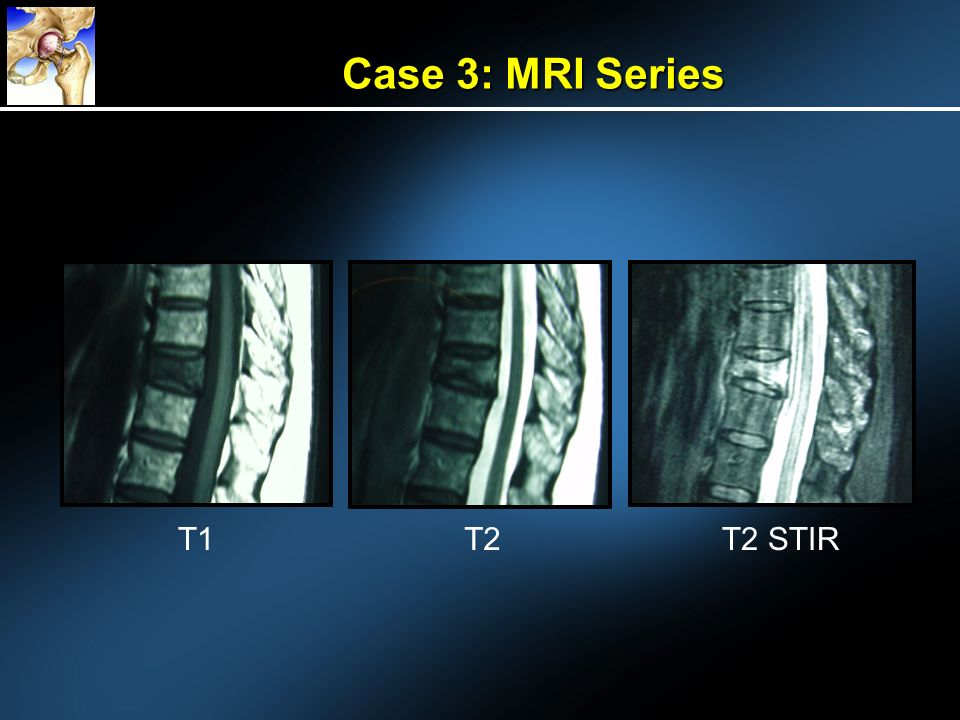 Case 3: MRI Series T1T2T2 STIR