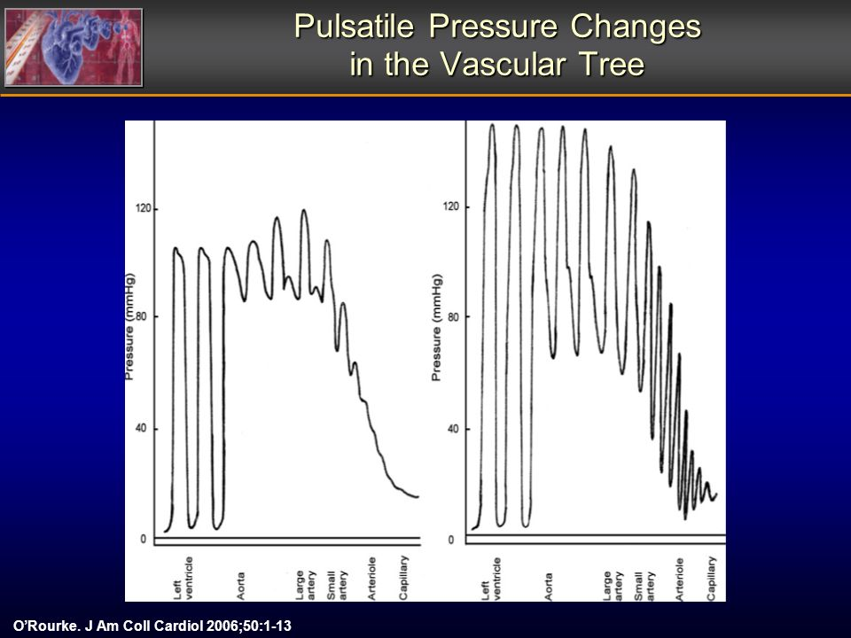 Pulsatile Pressure Changes in the Vascular Tree ORourke. J Am Coll Cardiol 2006;50:1-13