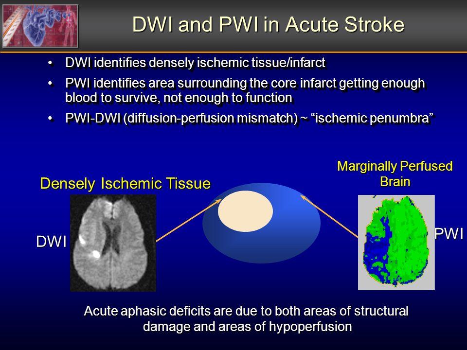 DWI and PWI in Acute Stroke DWI identifies densely ischemic tissue/infarctDWI identifies densely ischemic tissue/infarct PWI identifies area surroundi