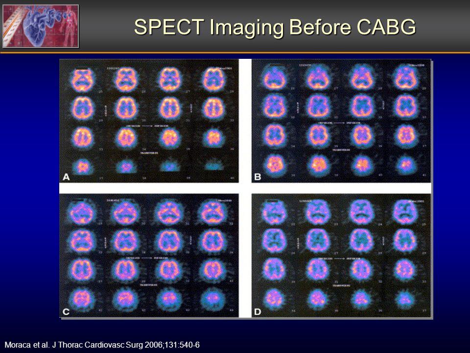 SPECT Imaging Before CABG Moraca et al. J Thorac Cardiovasc Surg 2006;131:540-6