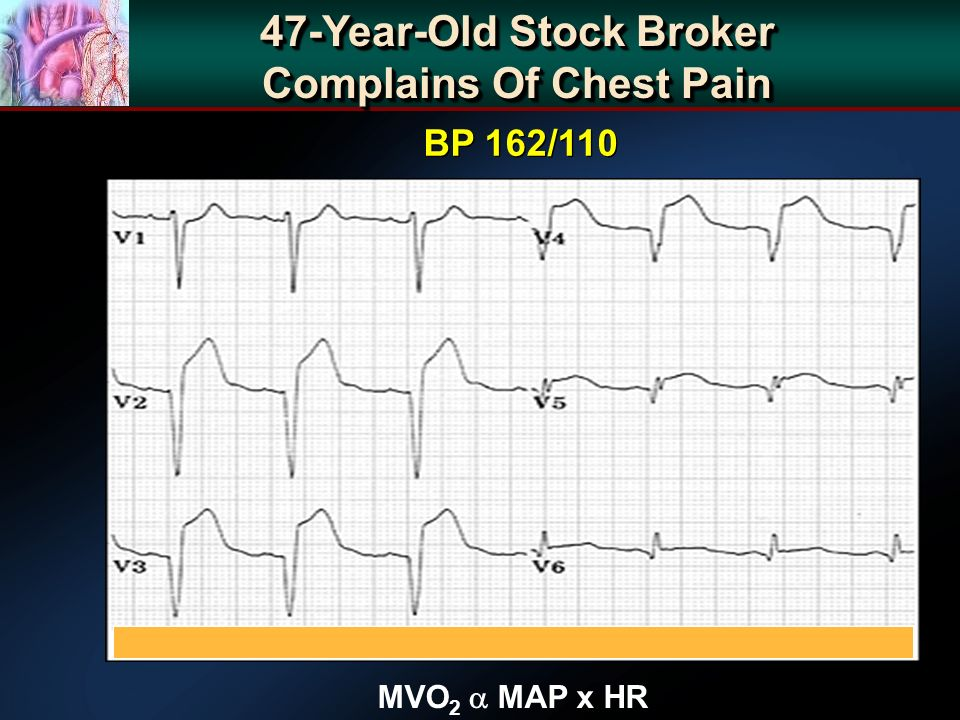 47-Year-Old Stock Broker Complains Of Chest Pain MVO 2 MAP x HR BP 162/110