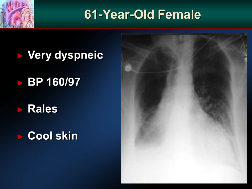 Very dyspneic BP 160/97 Rales Cool skin Very dyspneic BP 160/97 Rales Cool skin 61-Year-Old Female