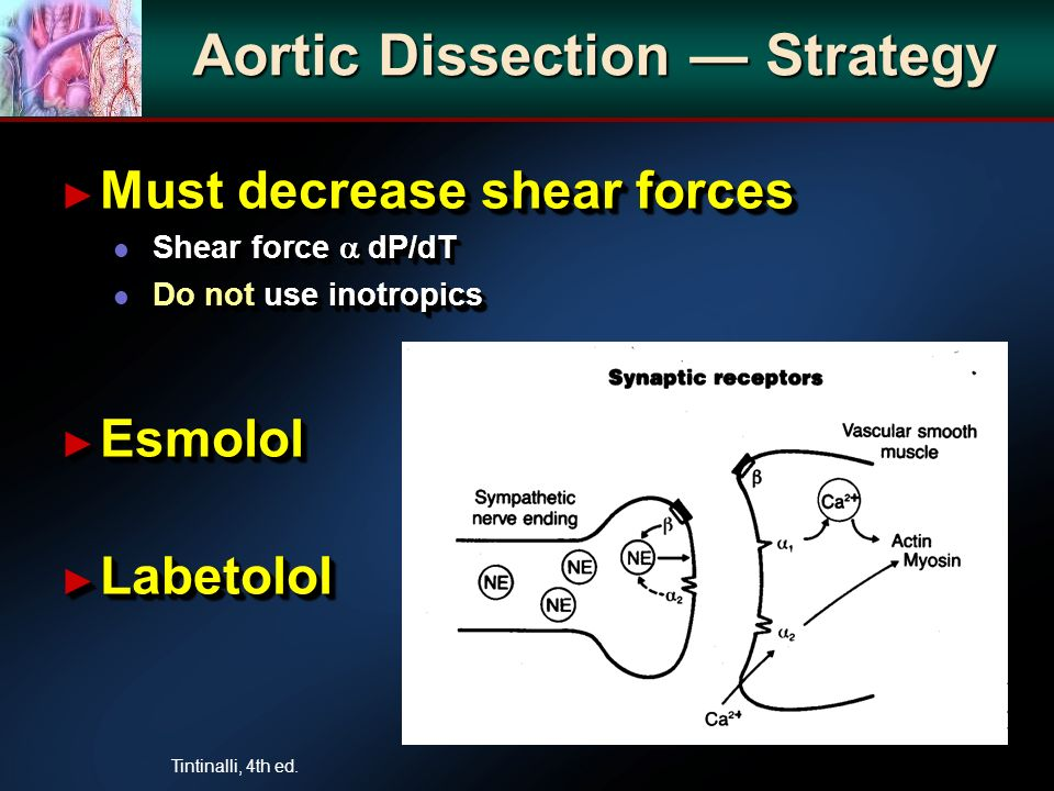 Aortic Dissection Strategy Must decrease shear forces Must decrease shear forces l Shear force dP/dT l Do not use inotropics Esmolol Esmolol Labetolol Labetolol Must decrease shear forces Must decrease shear forces l Shear force dP/dT l Do not use inotropics Esmolol Esmolol Labetolol Labetolol Tintinalli, 4th ed.
