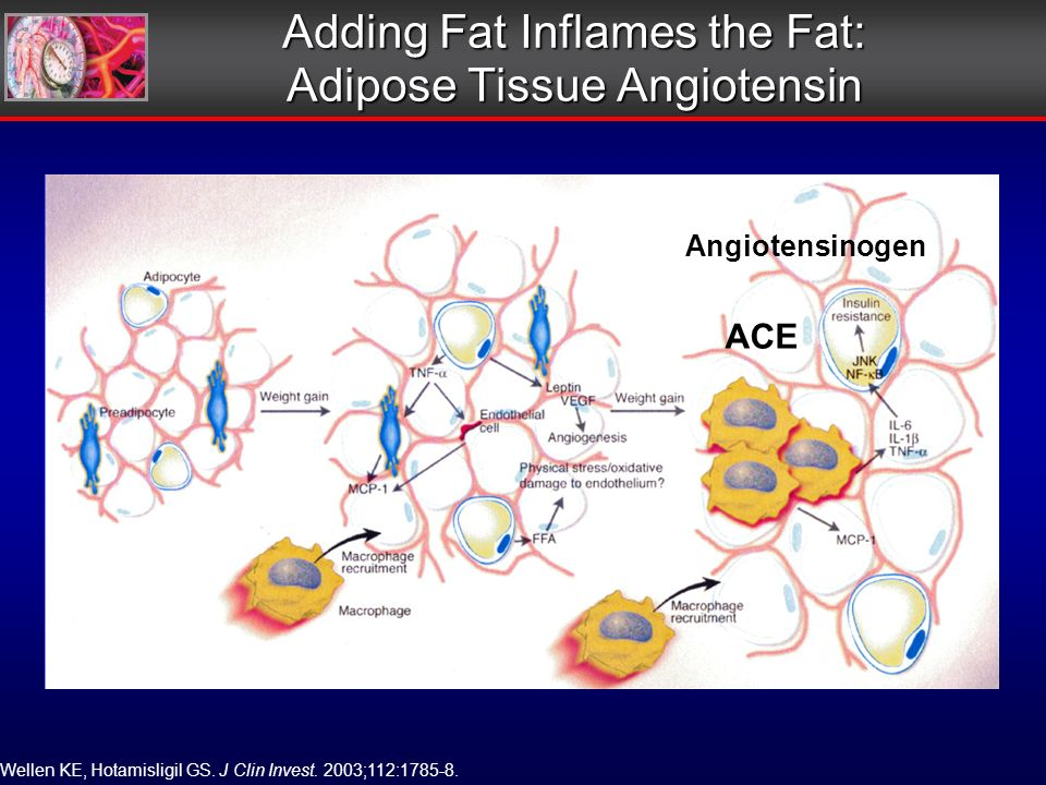 Adding Fat Inflames the Fat: Adipose Tissue Angiotensin Wellen KE, Hotamisligil GS.