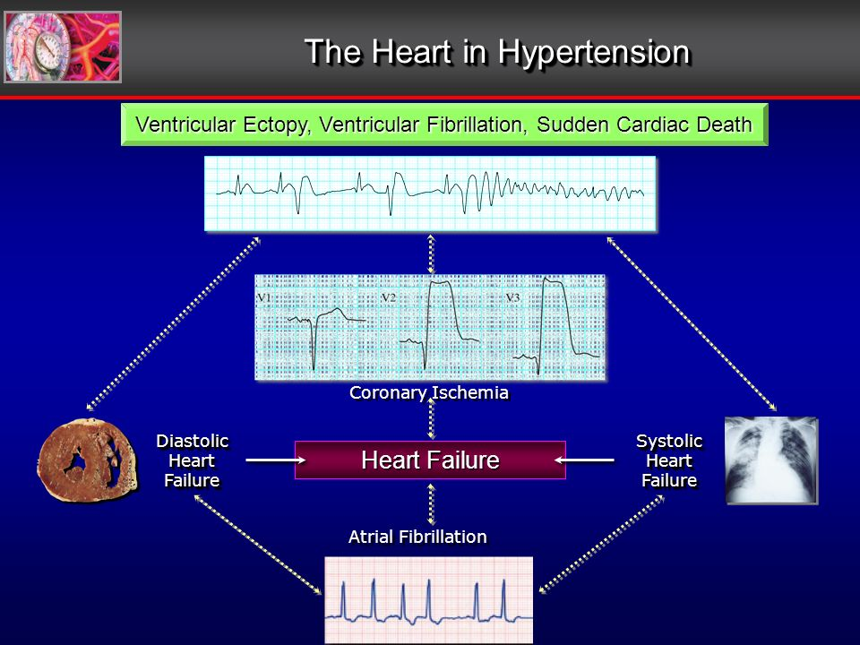 The Heart in Hypertension Coronary Ischemia Heart Failure Atrial Fibrillation Diastolic Heart Failure Diastolic SystolicHeartFailureSystolicHeartFailure Ventricular Ectopy, Ventricular Fibrillation, Sudden Cardiac Death