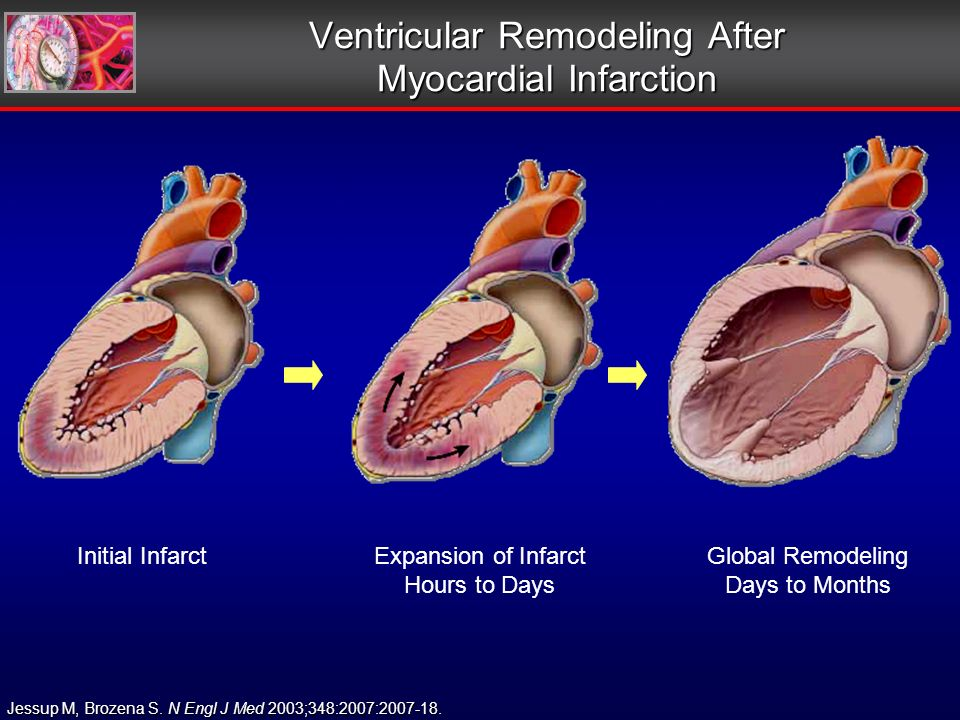 Expansion of Infarct Hours to Days Initial Infarct Ventricular Remodeling After Myocardial Infarction Jessup M, Brozena S.