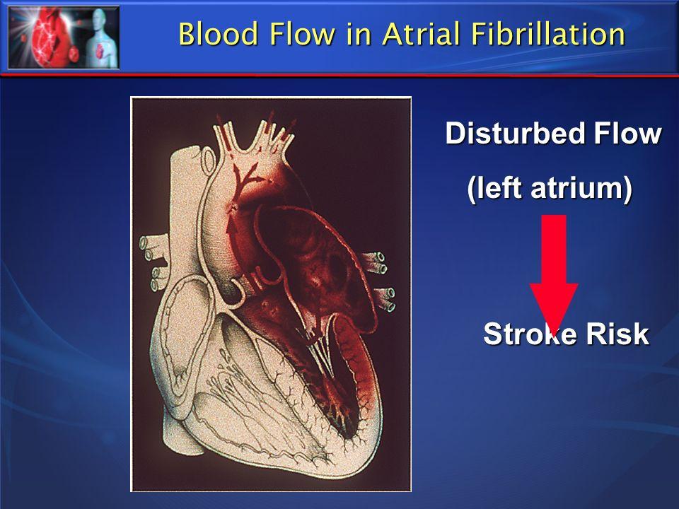 Disturbed Flow Disturbed Flow (left atrium) Stroke Risk Stroke Risk Blood Flow in Atrial Fibrillation