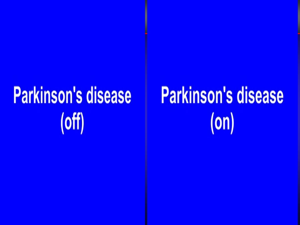 2004;351 (Dec 9):2498-2508 Landmark Trials in Parkinsons Disease Landmark Trials in Parkinsons Disease