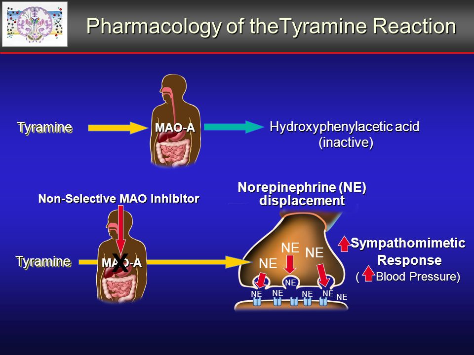 Pharmacology of theTyramine Reaction TyramineTyramine Hydroxyphenylacetic acid (inactive) MAO-A Sympathomimetic Response Response ( Blood Pressure) Norepinephrine (NE) displacement TyramineTyramine Non-Selective MAO Inhibitor MAO-A NE X