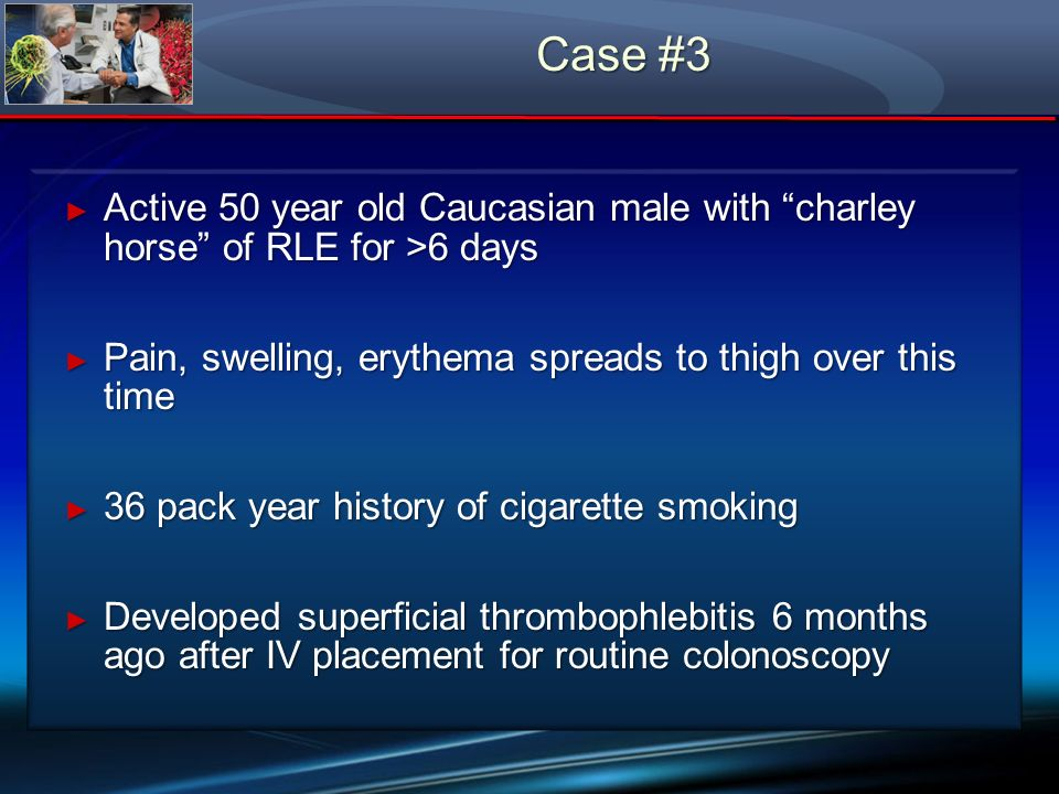Case #3 Active 50 year old Caucasian male with charley horse of RLE for >6 days Active 50 year old Caucasian male with charley horse of RLE for >6 day