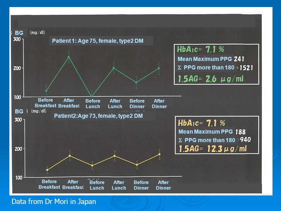 PPG more than 180 Mean Maximum PPG PPG more than 180 Mean Maximum PPG Before Breakfast After Breakfast Before Lunch After Lunch Before Dinner After Dinner Before Breakfast After Breakfast Before Lunch After Lunch Before Dinner After Dinner BG Patient 1: Age 75, female, type2 DM Patient2:Age 73, female, type2 DM Data from Dr Mori in Japan