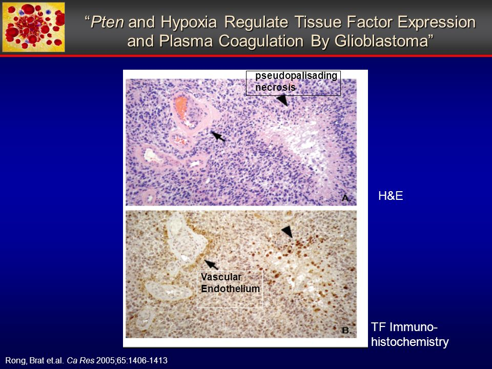 pseudopalisading necrosis Vascular Endothelium H&E TF Immuno- histochemistry Pten and Hypoxia Regulate Tissue Factor Expression and Plasma Coagulation By GlioblastomaPten and Hypoxia Regulate Tissue Factor Expression and Plasma Coagulation By Glioblastoma Rong, Brat et.al.