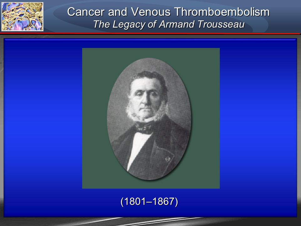 (1801–1867) Cancer and Venous Thromboembolism The Legacy of Armand Trousseau