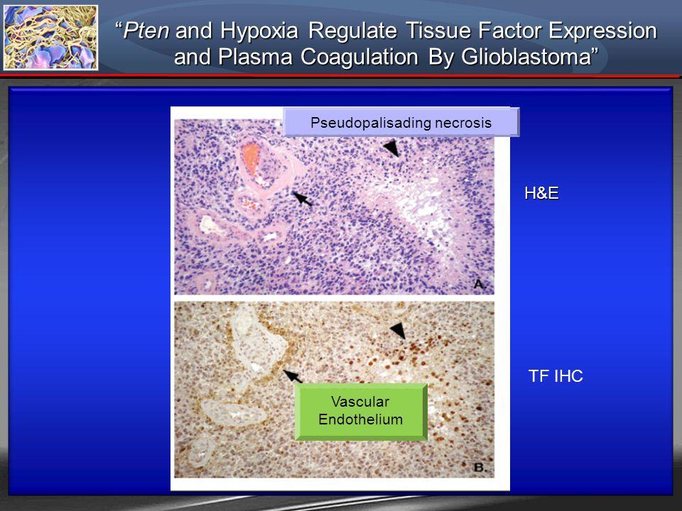 H&E TF IHC Pten and Hypoxia Regulate Tissue Factor ExpressionPten and Hypoxia Regulate Tissue Factor Expression and Plasma Coagulation By Glioblastoma