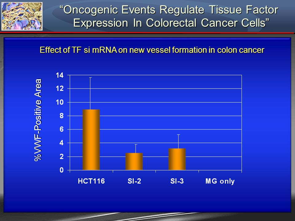 Effect of TF si mRNA on new vessel formation in colon cancer Oncogenic Events Regulate Tissue Factor Expression In Colorectal Cancer Cells Oncogenic E