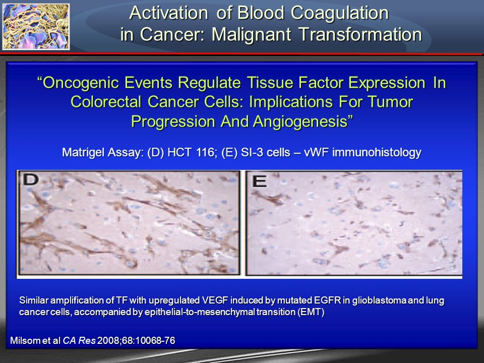 Oncogenic Events Regulate Tissue Factor Expression In Colorectal Cancer Cells: Implications For Tumor Progression And Angiogenesis Matrigel Assay: (D)
