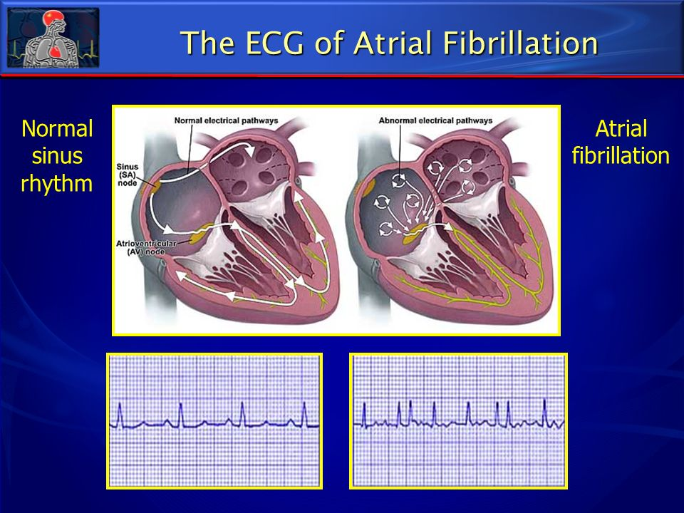 Normal sinus rhythm Atrial fibrillation The ECG of Atrial Fibrillation