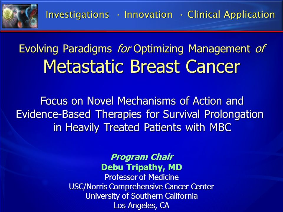 Evolving Paradigms for Optimizing Management of Metastatic Breast Cancer Investigations Innovation Clinical Application Focus on Novel Mechanisms of A