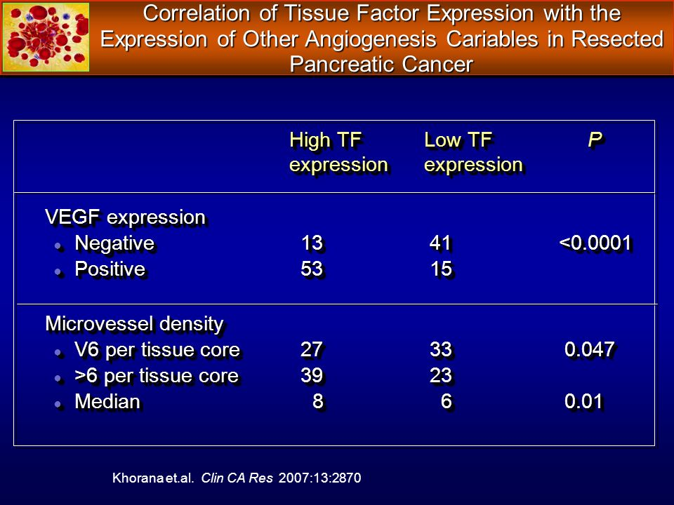 Correlation of Tissue Factor Expression with the Expression of Other Angiogenesis Cariables in Resected Pancreatic Cancer High TF Low TF P High TF Low TF P expression expression VEGF expression Negative 13 41 <0.0001 Negative 13 41 <0.0001 Positive 53 15 Positive 53 15 Microvessel density V6 per tissue core 27 33 0.047 V6 per tissue core 27 33 0.047 >6 per tissue core 39 23 >6 per tissue core 39 23 Median 8 6 0.01 Median 8 6 0.01 High TF Low TF P High TF Low TF P expression expression VEGF expression Negative 13 41 <0.0001 Negative 13 41 <0.0001 Positive 53 15 Positive 53 15 Microvessel density V6 per tissue core 27 33 0.047 V6 per tissue core 27 33 0.047 >6 per tissue core 39 23 >6 per tissue core 39 23 Median 8 6 0.01 Median 8 6 0.01 Khorana et.al.