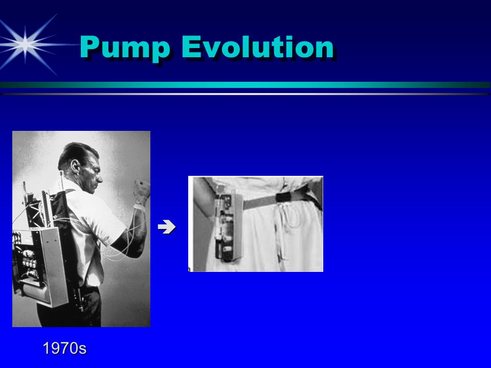 What Makes A Good Pump Candidate.