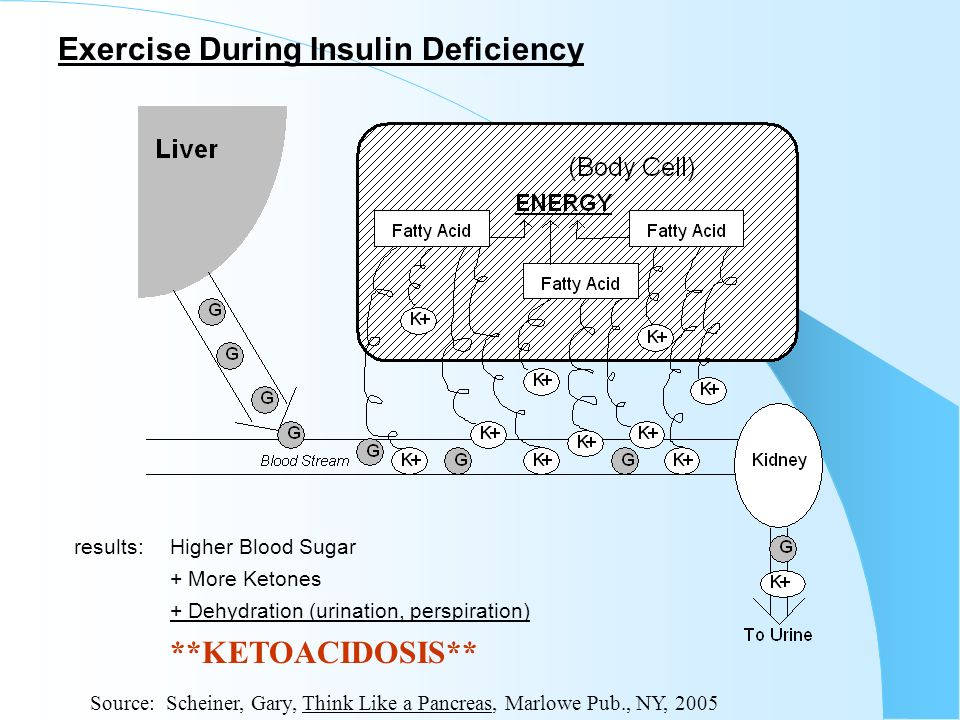 Exercise During Insulin Deficiency results:Higher Blood Sugar + More Ketones + Dehydration (urination, perspiration) **KETOACIDOSIS** Source: Scheiner