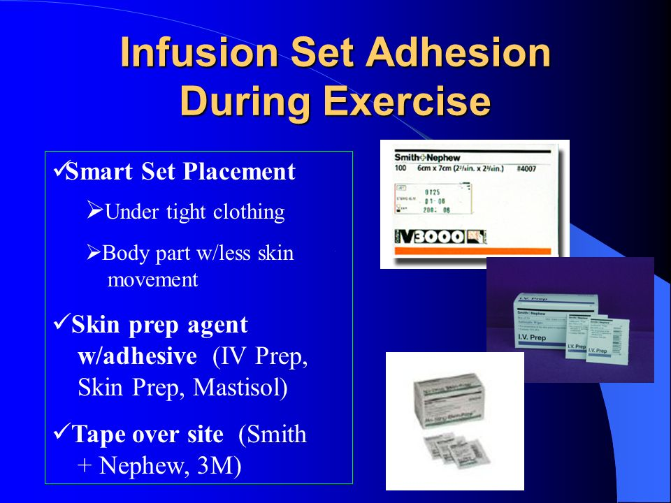 Infusion Set Adhesion During Exercise Smart Set Placement Under tight clothing Body part w/less skin movement Skin prep agent w/adhesive (IV Prep, Ski