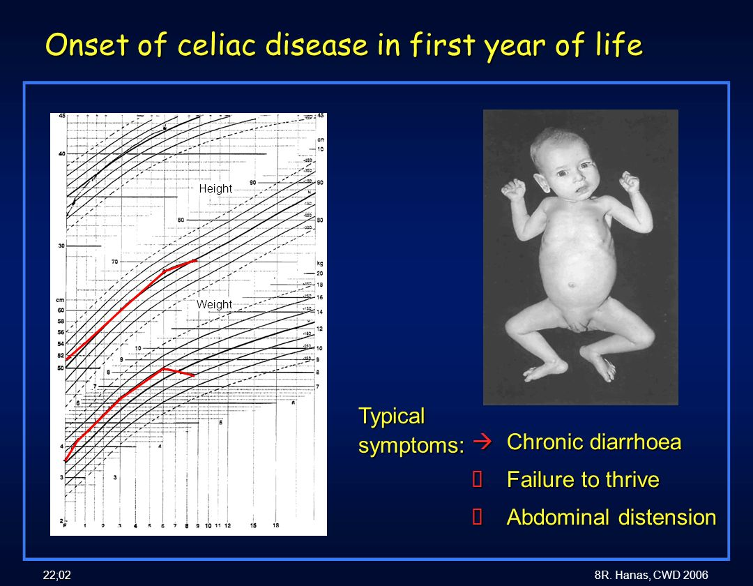 8R. Hanas, CWD 2006 22;02 Onset of celiac disease in first year of life àChronic diarrhoea àFailure to thrive àAbdominal distension Typical symptoms: