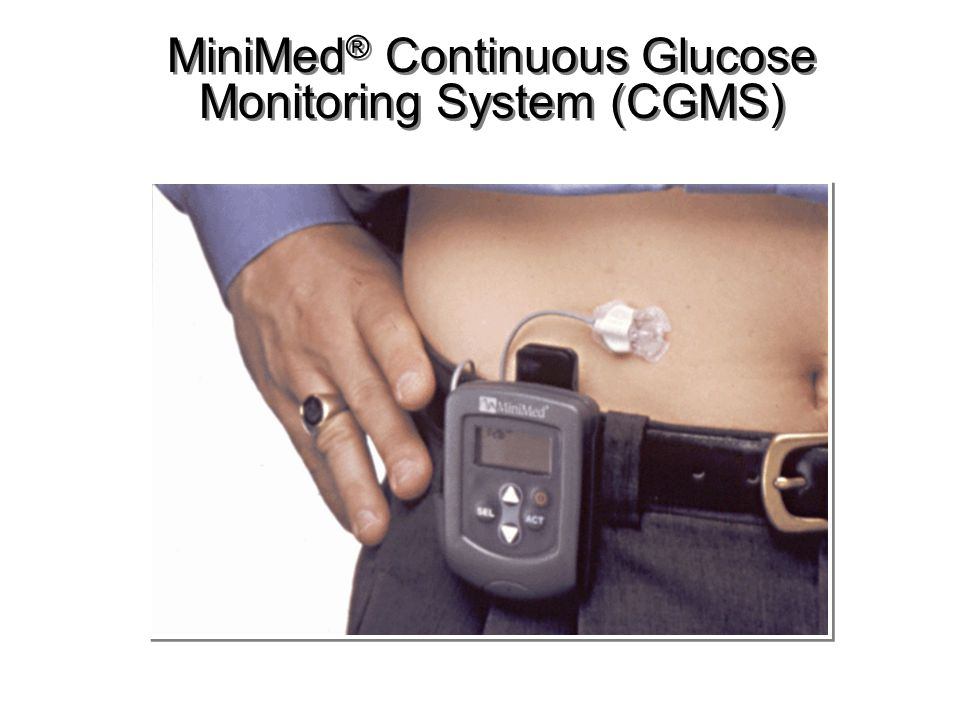 MiniMed ® Continuous Glucose Monitoring System (CGMS)