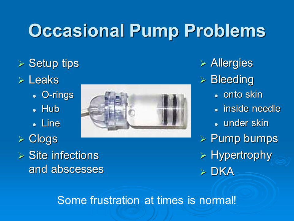 Occasional Pump Problems Setup tips Setup tips Leaks Leaks O-rings O-rings Hub Hub Line Line Clogs Clogs Site infections and abscesses Site infections