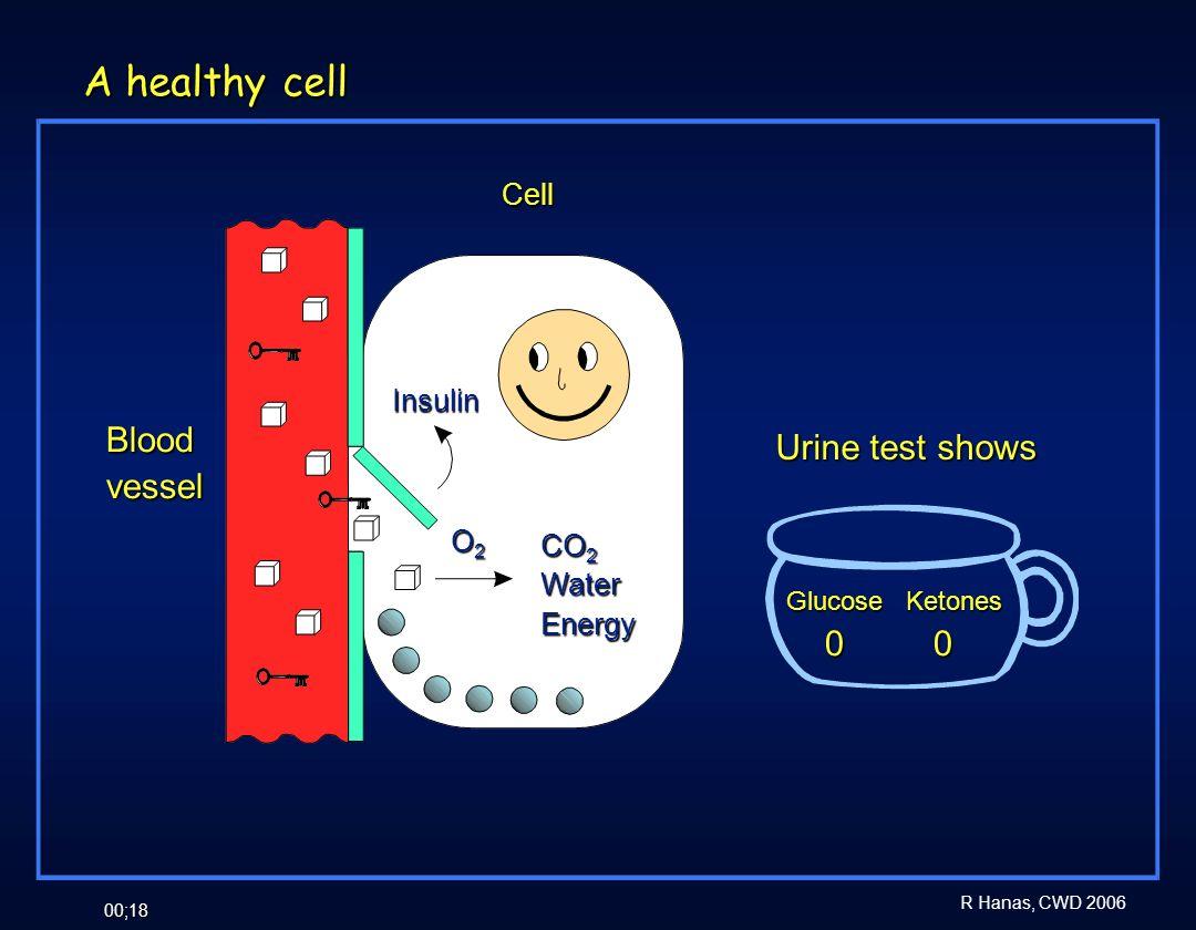 R Hanas, CWD 2006 00;18 A healthy cell Insulin O2O2O2O2 CO 2 WaterEnergy Urine test shows Glucose Ketones 0 0 0 0 Bloodvessel Cell