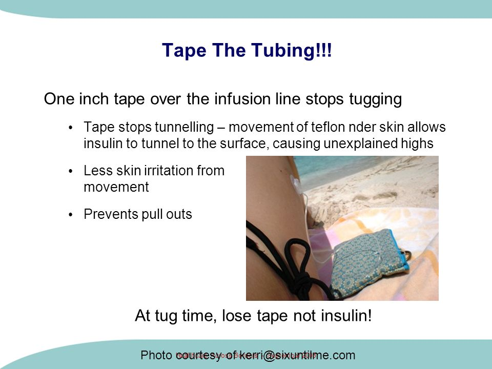 Healthcare Across Borders - September 2003 Tape The Tubing!!! One inch tape over the infusion line stops tugging Tape stops tunnelling – movement of t