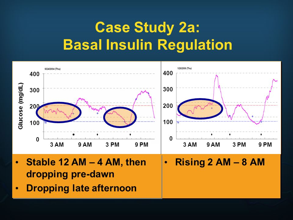 Case Study 2a: Basal Insulin Regulation Rising 2 AM – 8 AM Stable 12 AM – 4 AM, then dropping pre-dawn Dropping late afternoon Stable 12 AM – 4 AM, th