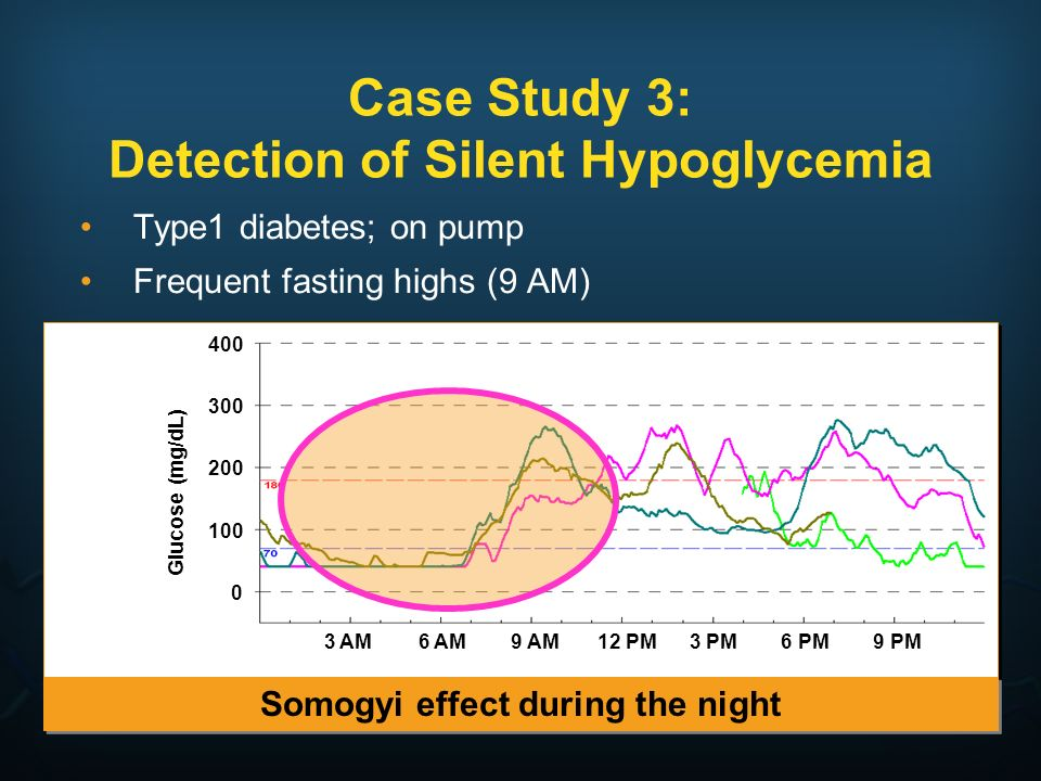 Case Study 3: Detection of Silent Hypoglycemia Type1 diabetes; on pump Frequent fasting highs (9 AM) Somogyi effect during the night Glucose (mg/dL) 4