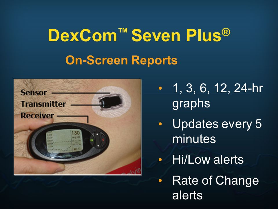 DexCom Seven Plus ® On-Screen Reports 1, 3, 6, 12, 24-hr graphs Updates every 5 minutes Hi/Low alerts Rate of Change alerts