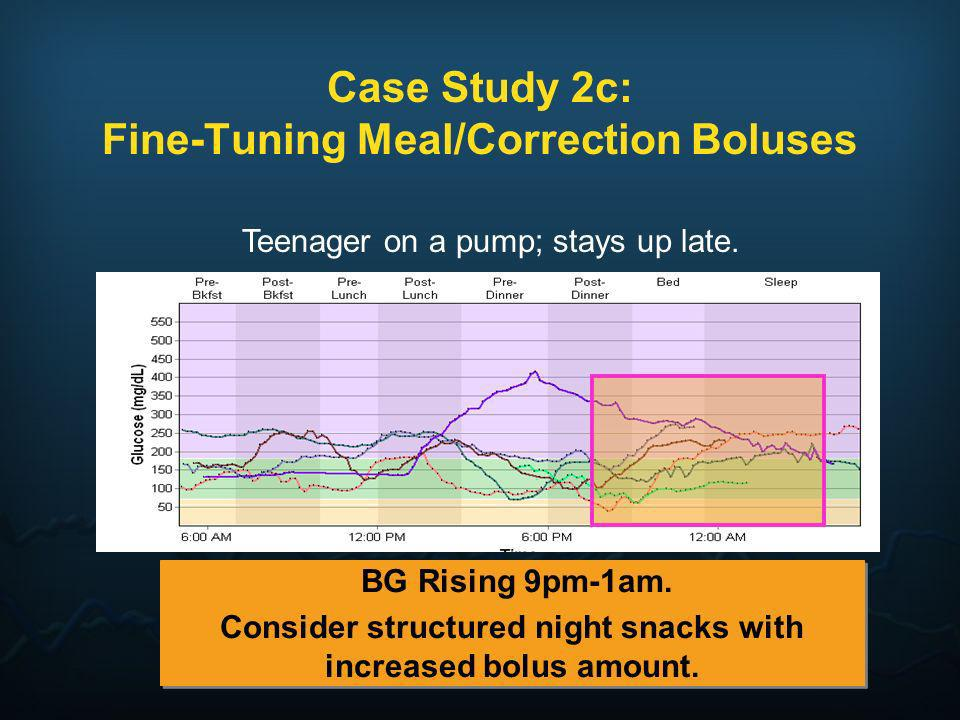 Case Study 2c: Fine-Tuning Meal/Correction Boluses BG Rising 9pm-1am. Consider structured night snacks with increased bolus amount. BG Rising 9pm-1am.