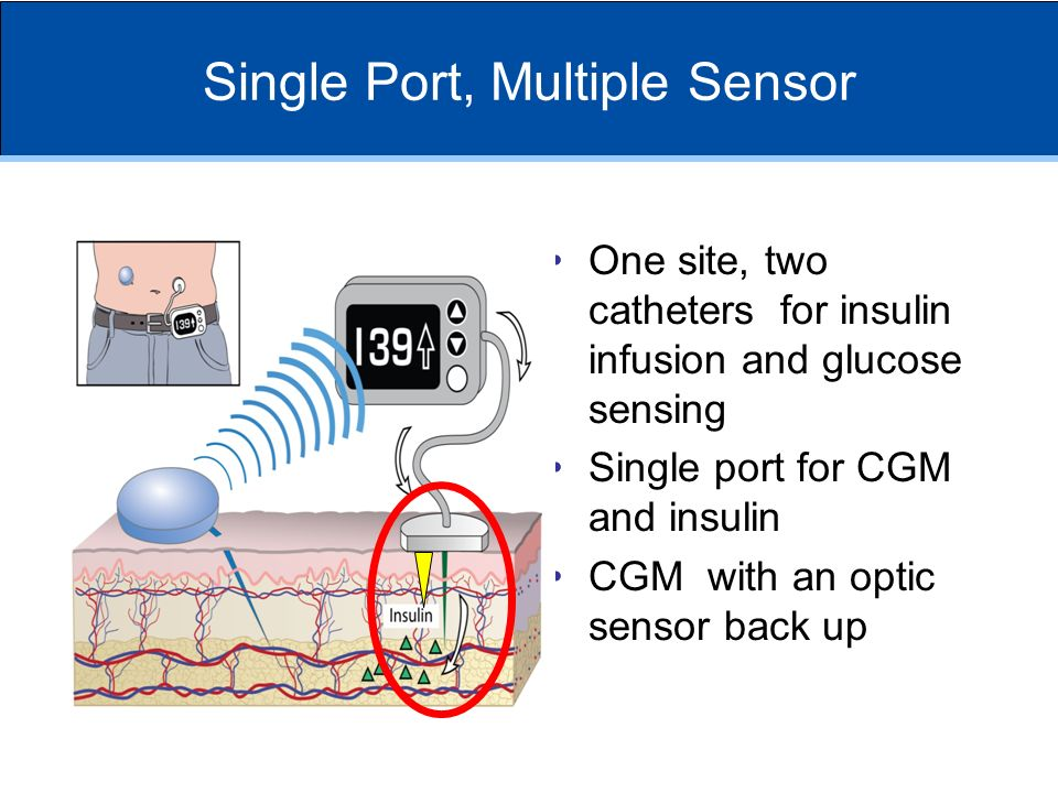 Single Port, Multiple Sensor One site, two catheters for insulin infusion and glucose sensing Single port for CGM and insulin CGM with an optic sensor