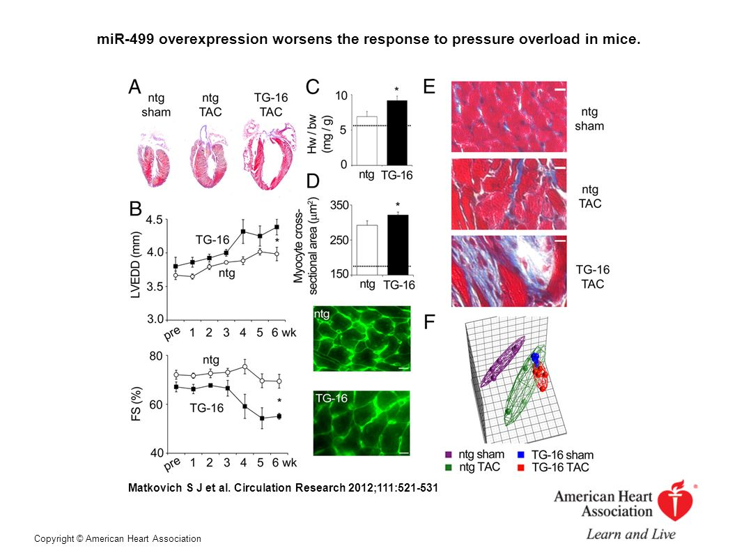 miR-499 overexpression worsens the response to pressure overload in mice. Matkovich S J et al. Circulation Research 2012;111:521-531 Copyright © Ameri