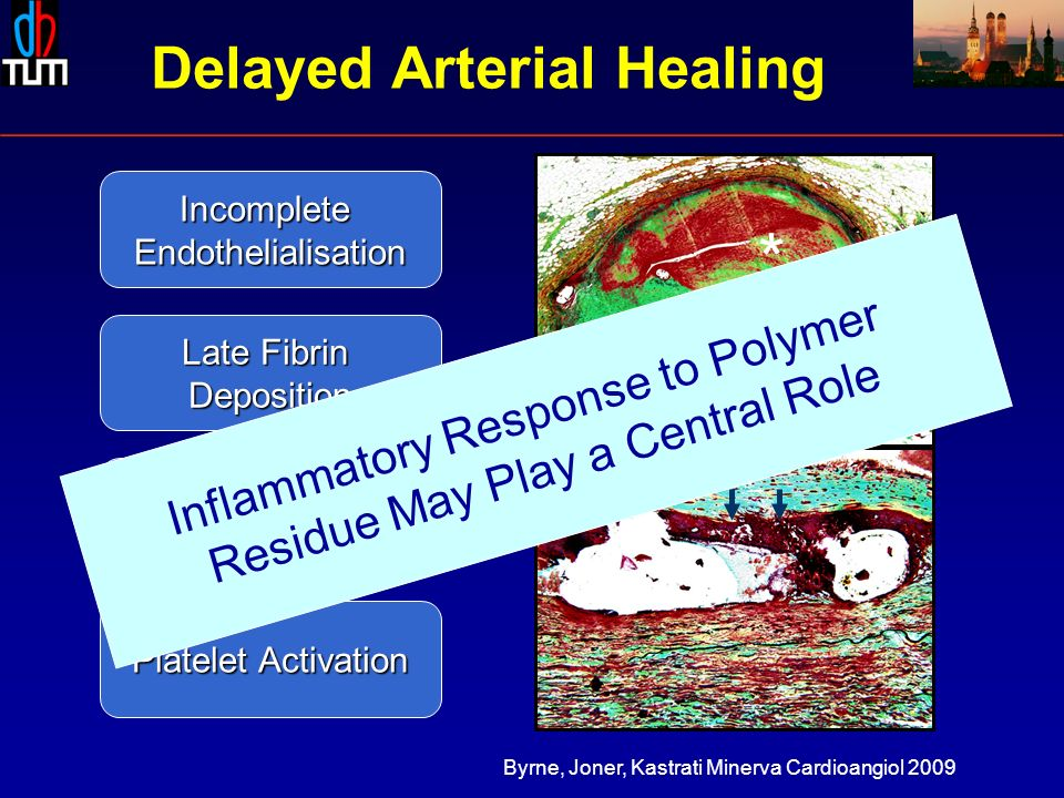* IncompleteEndothelialisation Late Fibrin Deposition ChronicInflammation Platelet Activation Delayed Arterial Healing Inflammatory Response to Polymer Residue May Play a Central Role Byrne, Joner, Kastrati Minerva Cardioangiol 2009