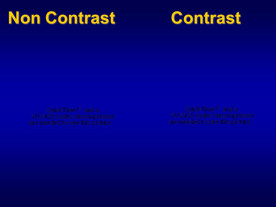 Non Contrast Contrast
