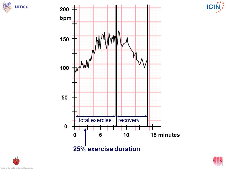 total exercise recovery 0 5 10 15 minutes 25% exercise duration 0 0 200 150 100 50 bpm