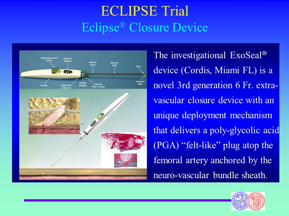 ECLIPSE Trial Eclipse ® Closure Device The investigational ExoSeal device (Cordis, Miami FL) is a novel 3rd generation 6 Fr. extra- vascular closure d