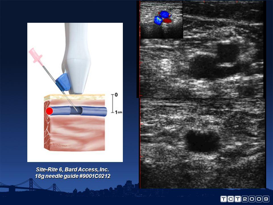 Site-Rite 6, Bard Access, Inc. 18g needle guide #9001C0212