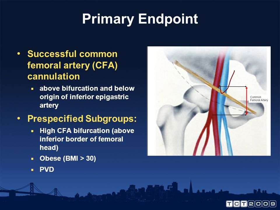 Primary Endpoint Successful common femoral artery (CFA) cannulation above bifurcation and below origin of inferior epigastric artery Prespecified Subgroups: High CFA bifurcation (above inferior border of femoral head) Obese (BMI > 30) PVD