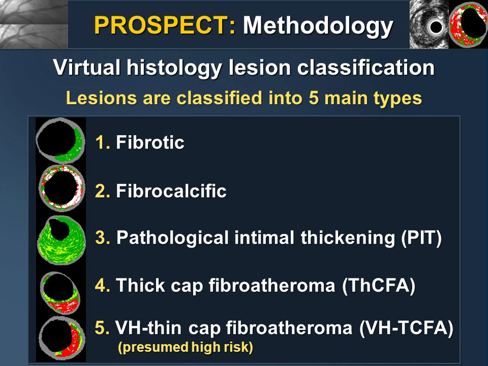 Lesions are classified into 5 main types 1. Fibrotic 2. Fibrocalcific 3. Pathological intimal thickening (PIT) 4. Thick cap fibroatheroma (ThCFA) 5. V