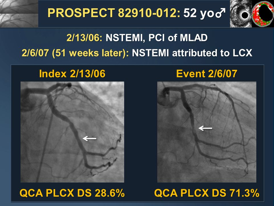 Index 2/13/06 Event 2/6/07 QCA PLCX DS 28.6% QCA PLCX DS 71.3% PROSPECT 82910-012: 52 yo 2/13/06: NSTEMI, PCI of MLAD 2/6/07 (51 weeks later): NSTEMI