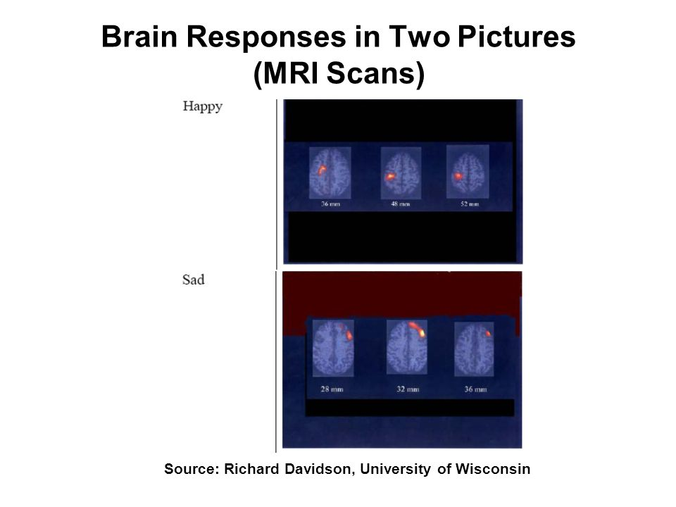 Brain Responses in Two Pictures (MRI Scans) Source: Richard Davidson, University of Wisconsin