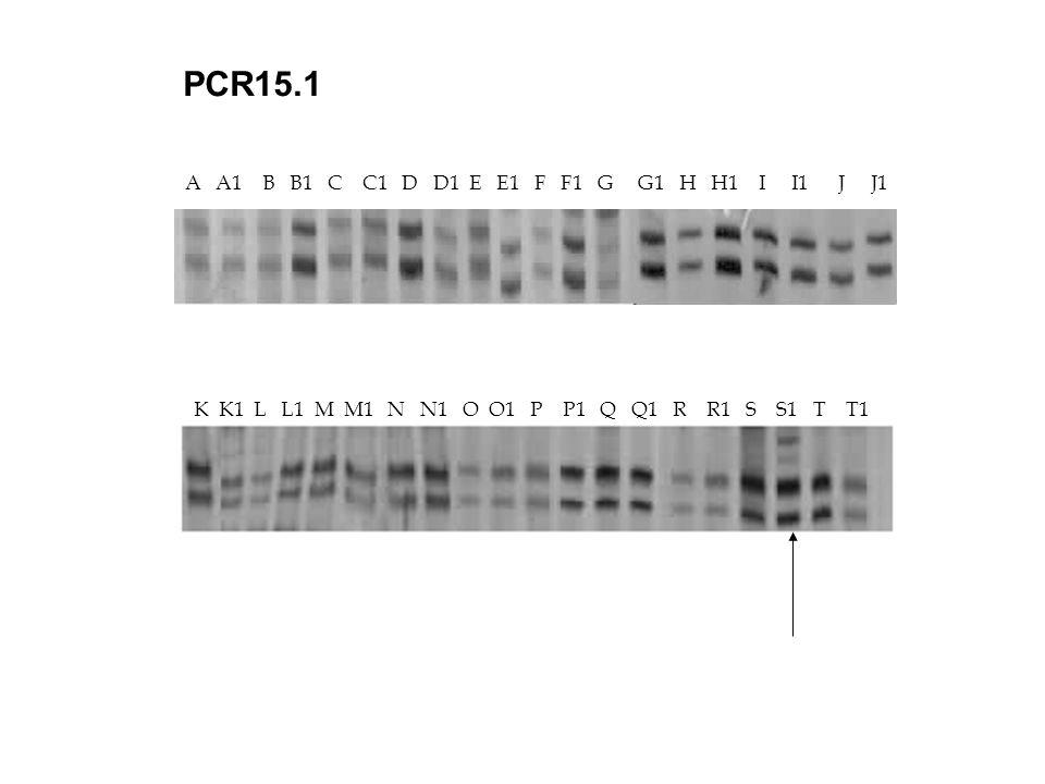 A A1 B B1 C C1 D D1 E E1 F F1 G G1 H H1 I I1 J J1 K K1 L L1 M M1 N N1 O O1 P P1 Q Q1 R R1 S S1 T T1 PCR15.1 K K1 L L1 M M1 N N1 O O1 P P1 Q Q1 R R1 S S1 T T1