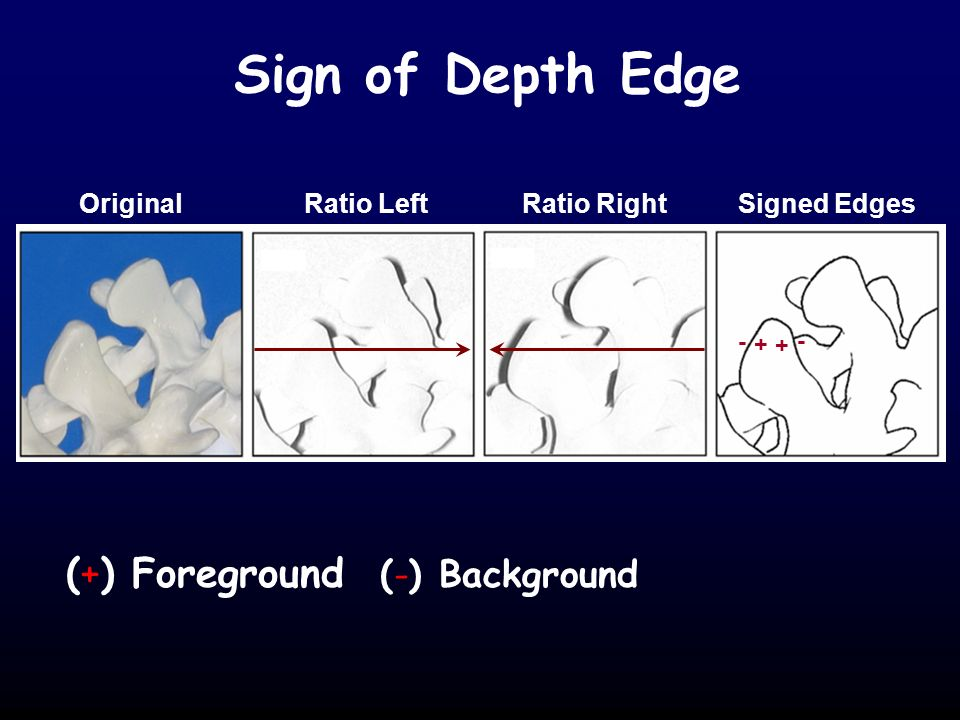 Sign of Depth Edge + - + - (+) Foreground (-) Background Original Ratio Left Ratio Right Signed Edges