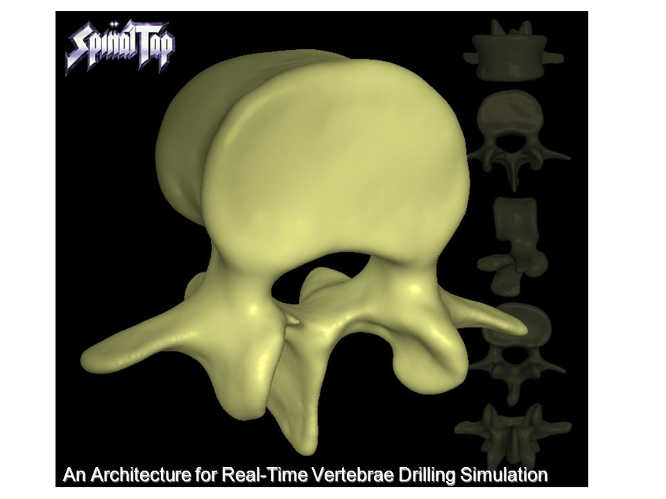 An Architecture for Real-Time Vertebrae Drilling Simulation
