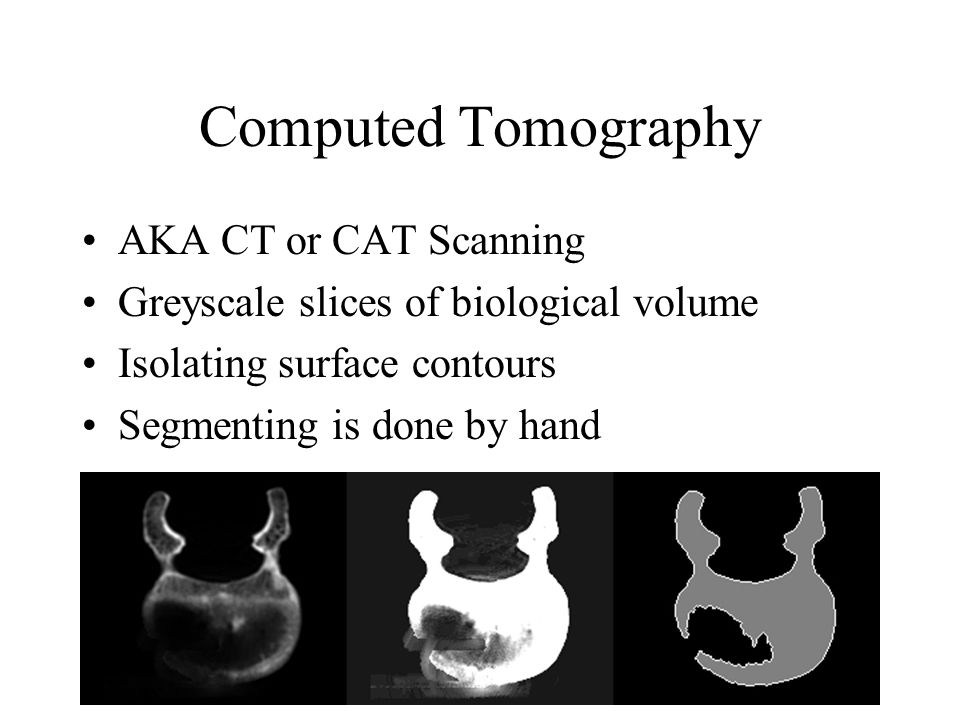 Computed Tomography AKA CT or CAT Scanning Greyscale slices of biological volume Isolating surface contours Segmenting is done by hand